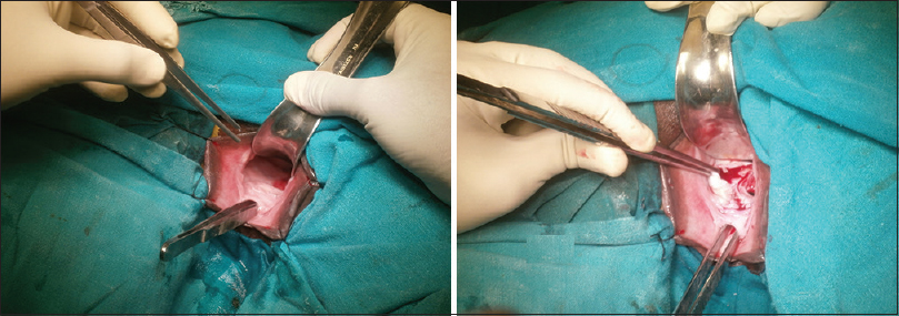Figure 2: Vaginal wall flaps raised after giving a circumscribed incision around fistula